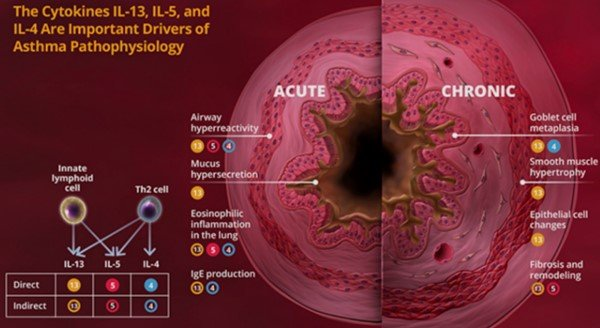 Difference Between Acute And Chronic Asthma