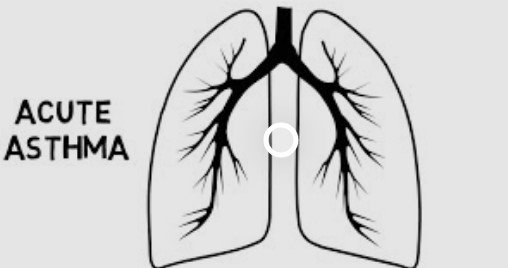 What Is Acute Asthma